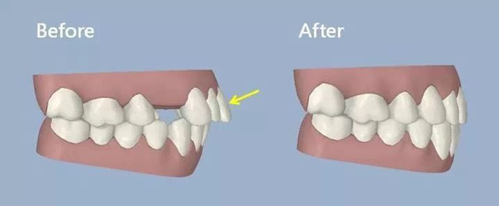 Before and After Clear Dental Care